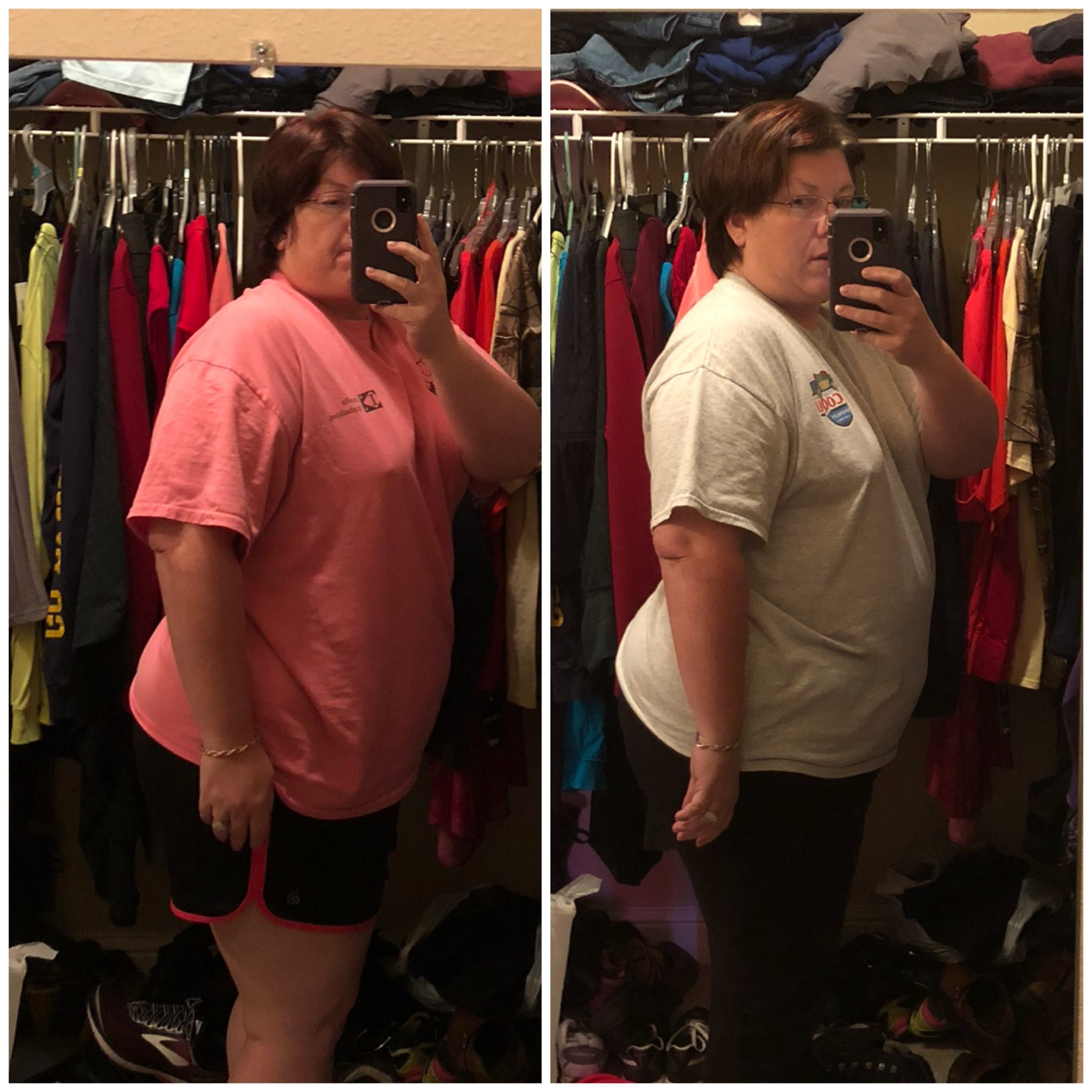 Kimberly's Weight Loss Before and After
