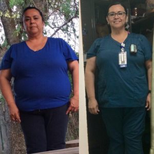 Elsa lost 40 Lbs before and after